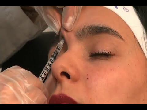 Acido Hialuronico y Botox aplicación sencilla y rápida en Bogota
