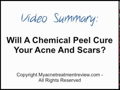 Will A Chemical Peel Cure Your Acne And Scars?