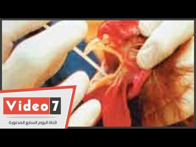 """بالفيديو.. باحثة مصرية تبتكر مصل جديد لعلاج """"الدجاج"""" من إنفلونزا الطيور"""