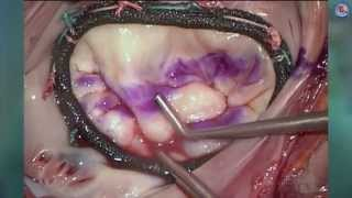 Minimally invasive mitral valve repair using a semi-rigid annuloplasty ring with  the Memo3D ReChord