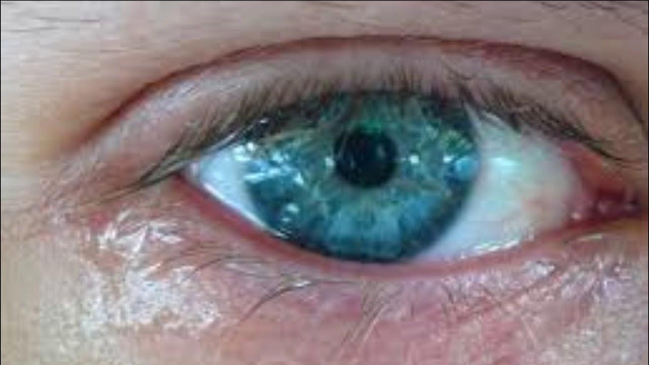 Глаза слезятся от сварки что делать в домашних условиях 294