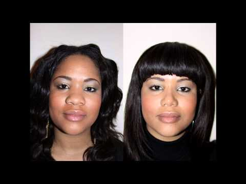 African American Female Rhinoplasty NYC Before & After Dr. Sam Rizk