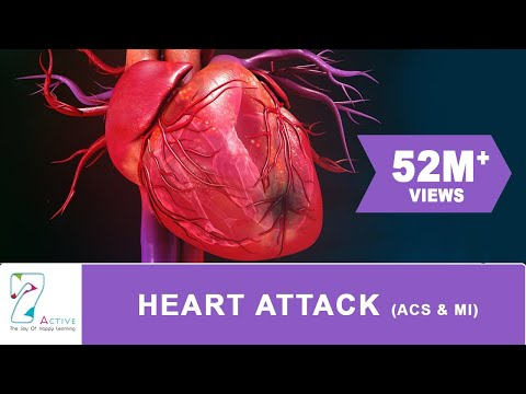 HEART ATTACK (ACS & MI)