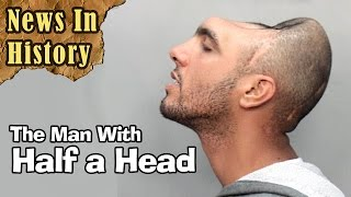 Man With Half A Head - News In History