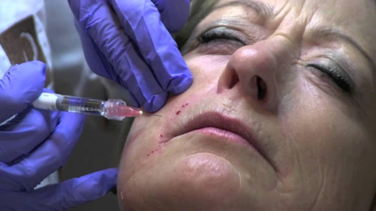 overtollig huid laten verwijderen