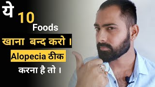 Foods to be avoid in Alopecia areata || How to treat  alopecia areata