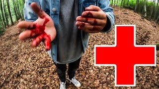 Der Unfall !| Youtube Camp #3| CrispyRob