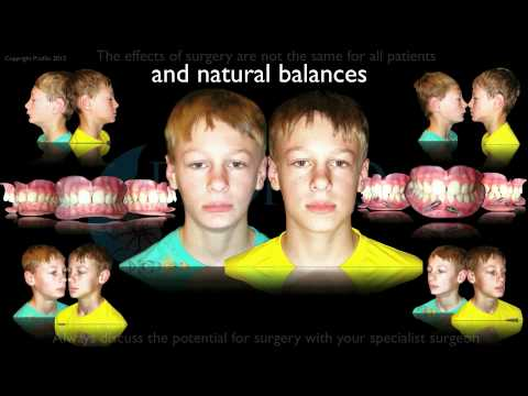 Before & after jaw distraction surgery before braces with IMDO for dental overbite