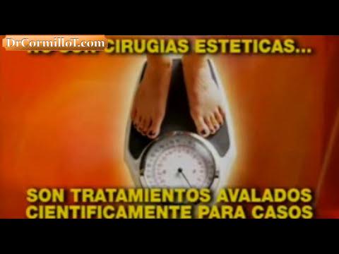 Dr. Cormillot | Las cirugías para la obesidad