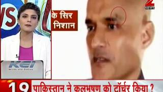 News 100: New video from Pakistan shows wound marks on Kulbhushan Jadhav's face