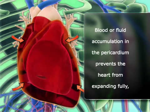Cardiac tamponade English version