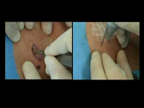 excision tattoo removal cost pics of tattoos behind the ear