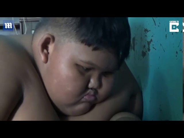 The ten-year-old who is too FAT to go to school after cola and noodle