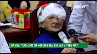 (VTC14)_Bà Chài tươi cười dự họp báo sau khi cắt u trên mặt