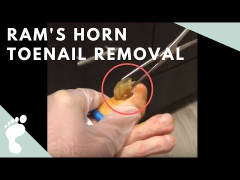 Lexington Podiatry Ram's Horn Toenail Removal