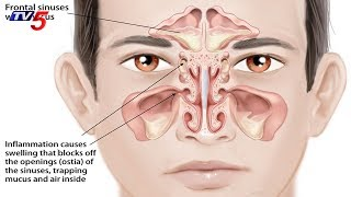 Symptoms and Treatments Of Sinus Infection | Maa E.N.T. Hospital