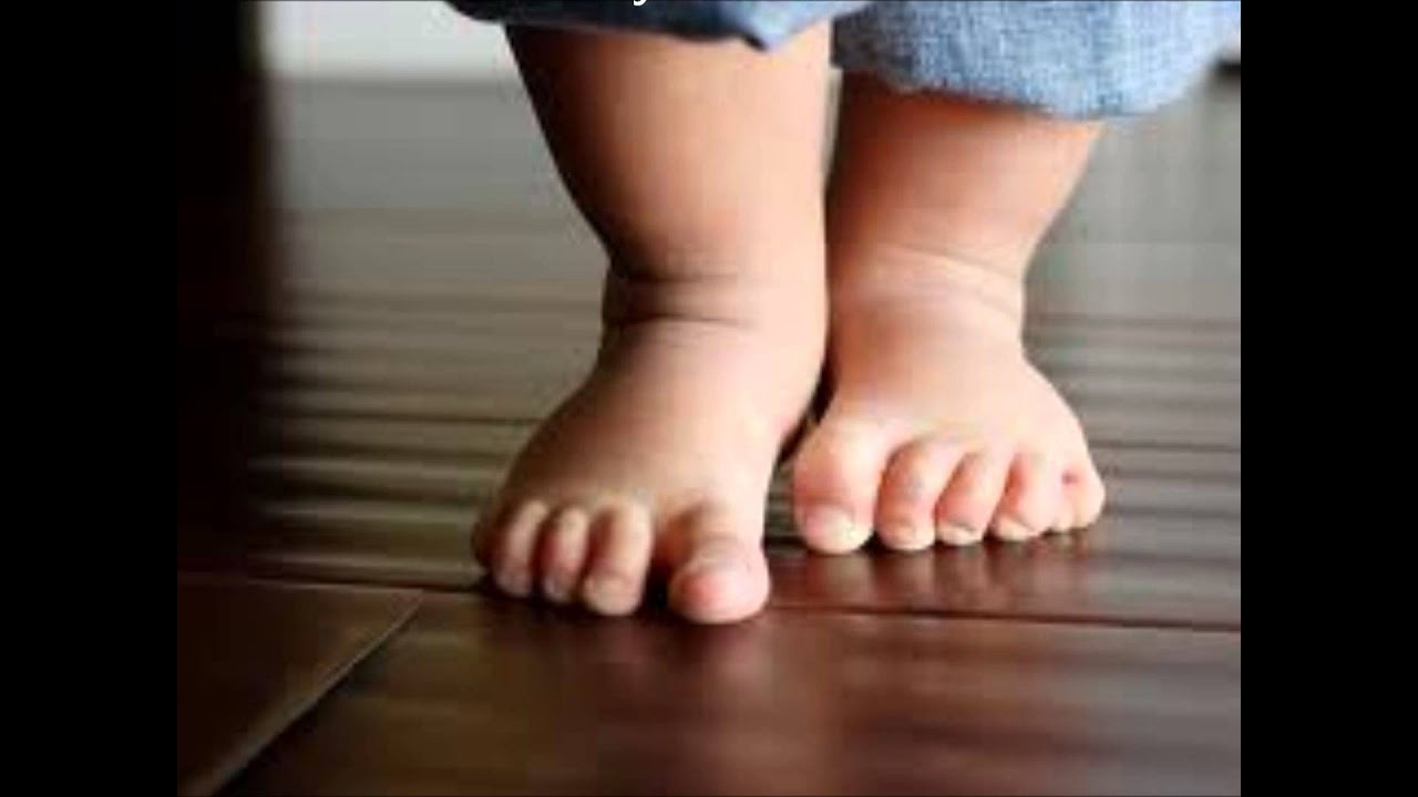 Плоско-вальгусная установка стоп у ребенка фото