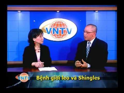 Bệnh giời leo (Zona) và Shingles  - 1