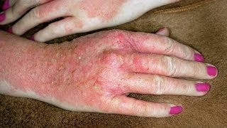 Eczema Home Treatment for Hands : Dyshidrotic Eczema Treatment for Hands