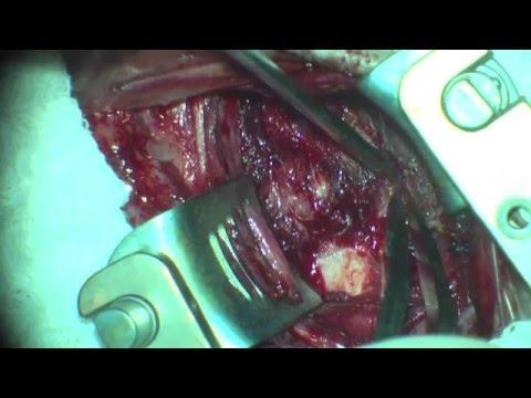 Cirurgia de Fratura e Hérnia de Disco na Coluna Cervical - Cervical Spine Surgery