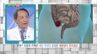 [HIT] 비타민 - 혈변과 까만 변 증상은 대장암과 관련 있는가?. 20150401