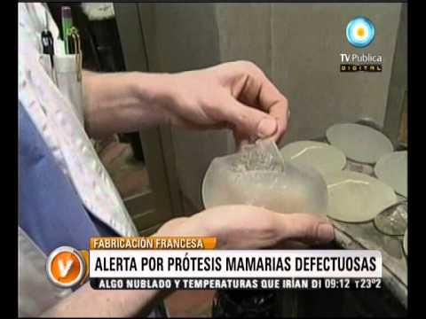 Visión Siete: Alerta por prótesis mamarias defectuosas