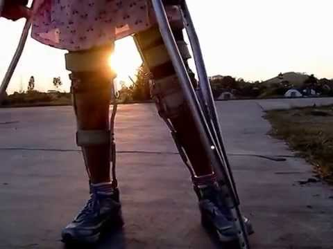 Leg braces in evening sunlight.