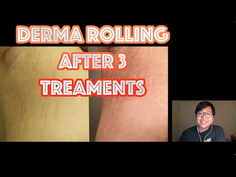 Derma Rolling - Stretch Mark Removal Update #1