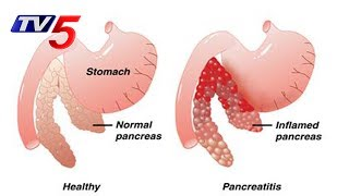 Pancreatitis Symptoms and Treatments | Aster Prime Hospital | Health File | TV5 News