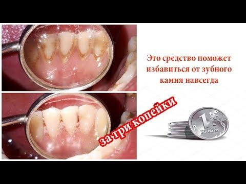 Это средство поможет забыть о зубном камне навсегда