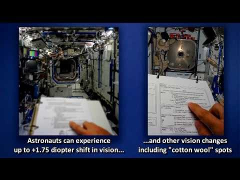 ISS Update: Human Research Aboard Station