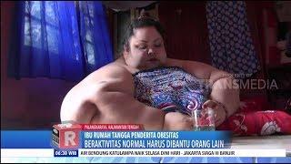 VIRAL! Ibu Penderita Obesitas Dengan Berat Badan 350 Kg