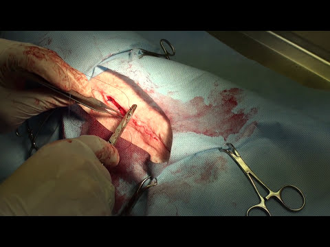How Does a Dog Spay Work?  *GRAPHIC SURGERY*