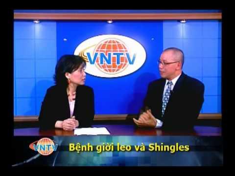 Bệnh giời leo (Zona) và Shingles - 2