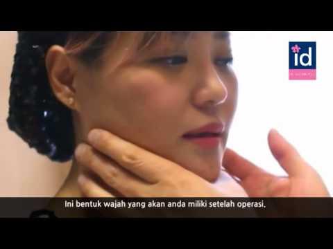 [Review Operasi Plastik Korea] Green Channel Thailand - Indonesian subtitle