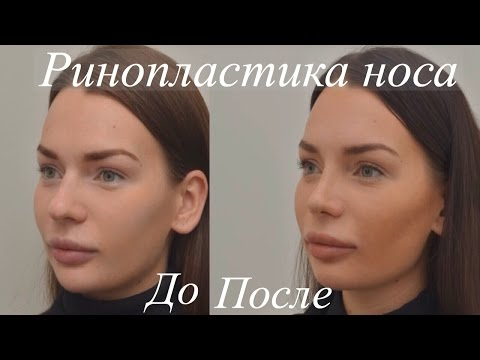 Ринопластика До и После - Пластика Носа