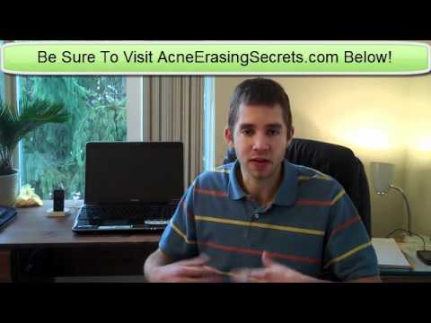 Dealing With Bad Severe Acne