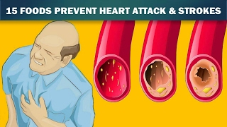 😍 15 Foods That Unclog Arteries Naturally And Protect Against Heart Attack