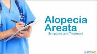 Alopecia Areata: Symptoms and Treatment