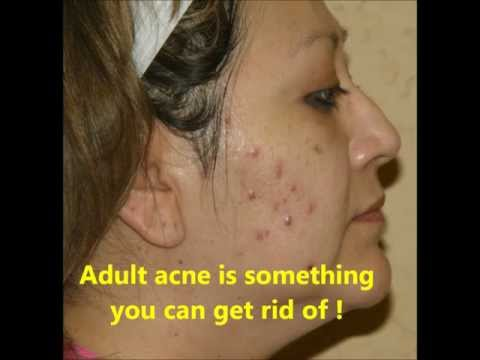 Adult acne : why you get it, How to treat adult acne