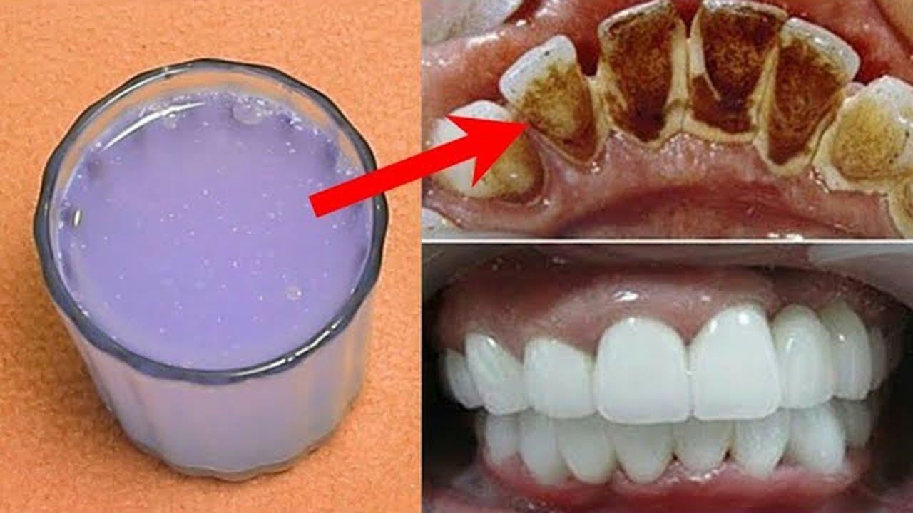 في 2 دقيقتين اسنانك الصفراء تصبح بيضاء تلمع خالية من الجير// تبييض الأسنان في المنزل