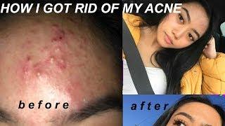 SKINCARE ROUTINE 2018 - how i got rid of severe acne