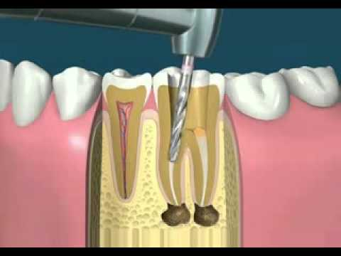 Root Canal Treatment Video dr lamisse