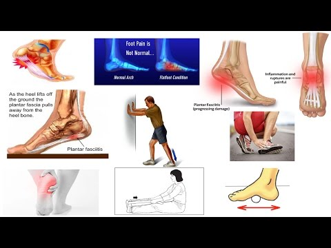Correct Plantar Fasciitis Quickly! (Medically Proven) The Best Exercises & Stretches - Dr Mandell