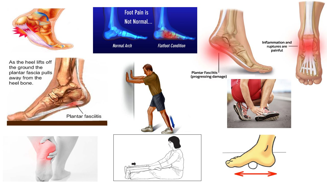 Plantar Fascia Stretches Plantar Fascia Stretches new photo