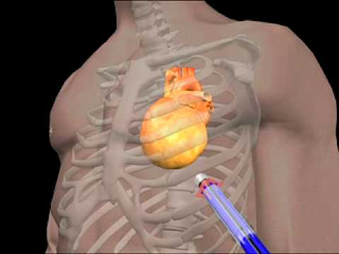Enlarged Heart Animation