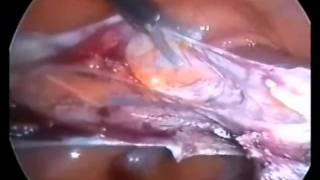 ovarian cyst after menopause