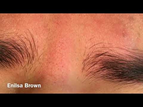 Blackhead Extractions On The Forehead/ Christian Part 1