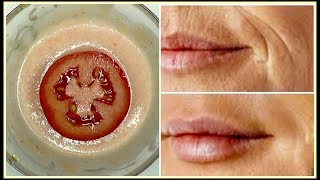 GET RID OF MOUTH WRINKLES AND LAUGH LINES, NO FILLERS + FACIAL MASSAGES |Khichi Beauty