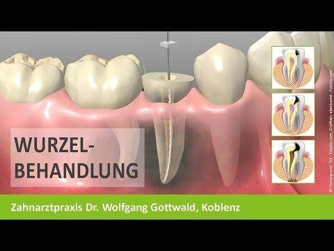 Wurzelbehandlung Zahnarzt Koblenz - Dr. Wolfgang Gottwald